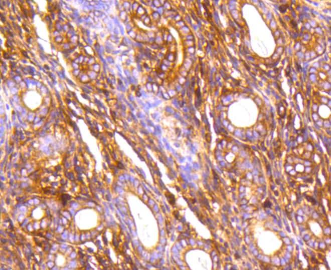 Filamin A Antibody in Immunohistochemistry (Paraffin) (IHC (P))