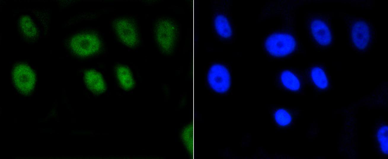 H2AK9ac Antibody in Immunocytochemistry (ICC/IF)
