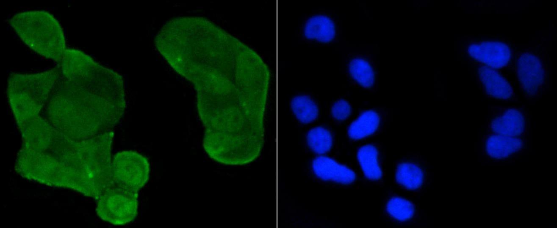 Acetyl-P53 (Lys370) Antibody in Immunocytochemistry (ICC)
