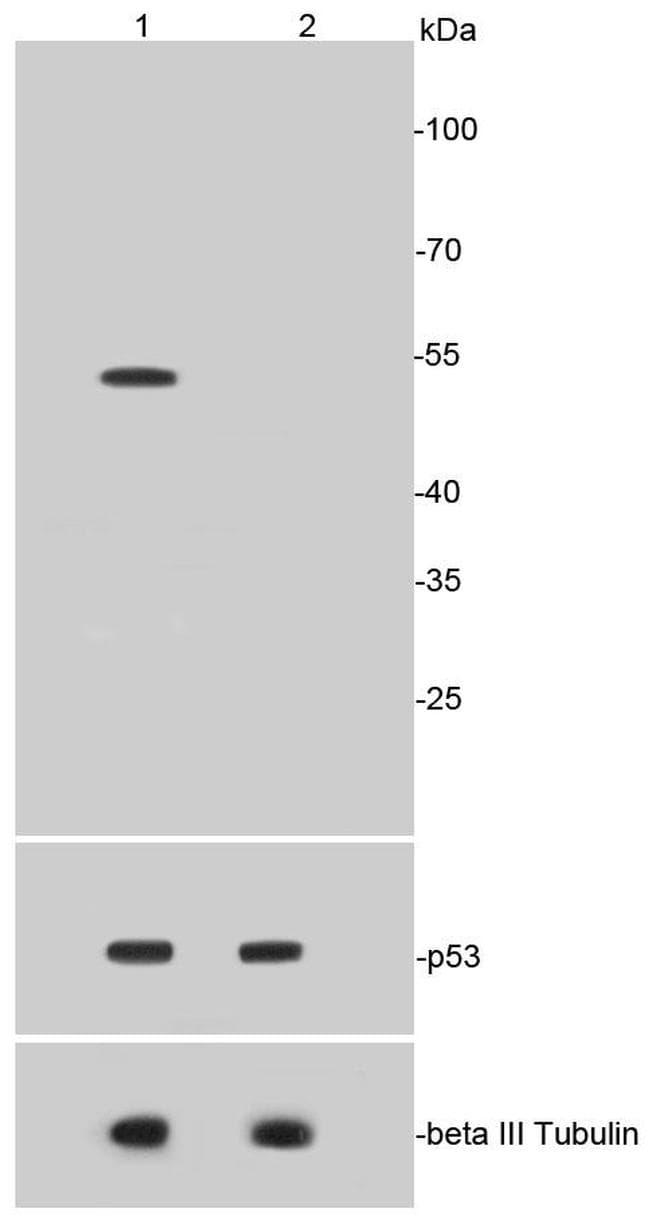 Acetyl-P53 (Lys370) Antibody in Western Blot (WB)