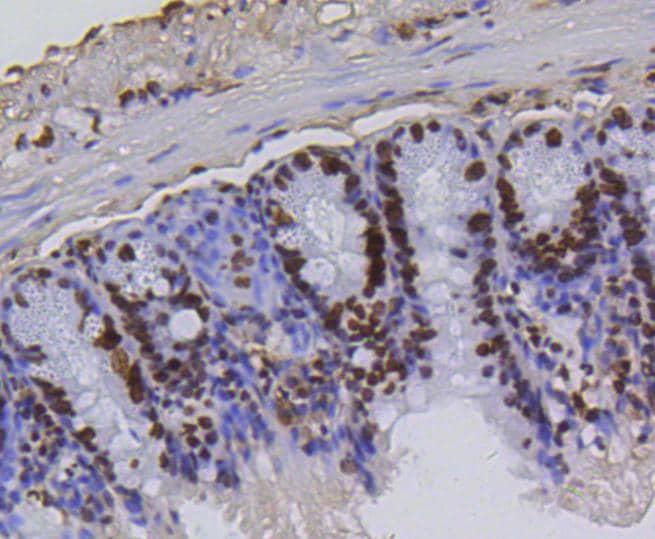 H4K5ac Antibody in Immunohistochemistry (Paraffin) (IHC (P))
