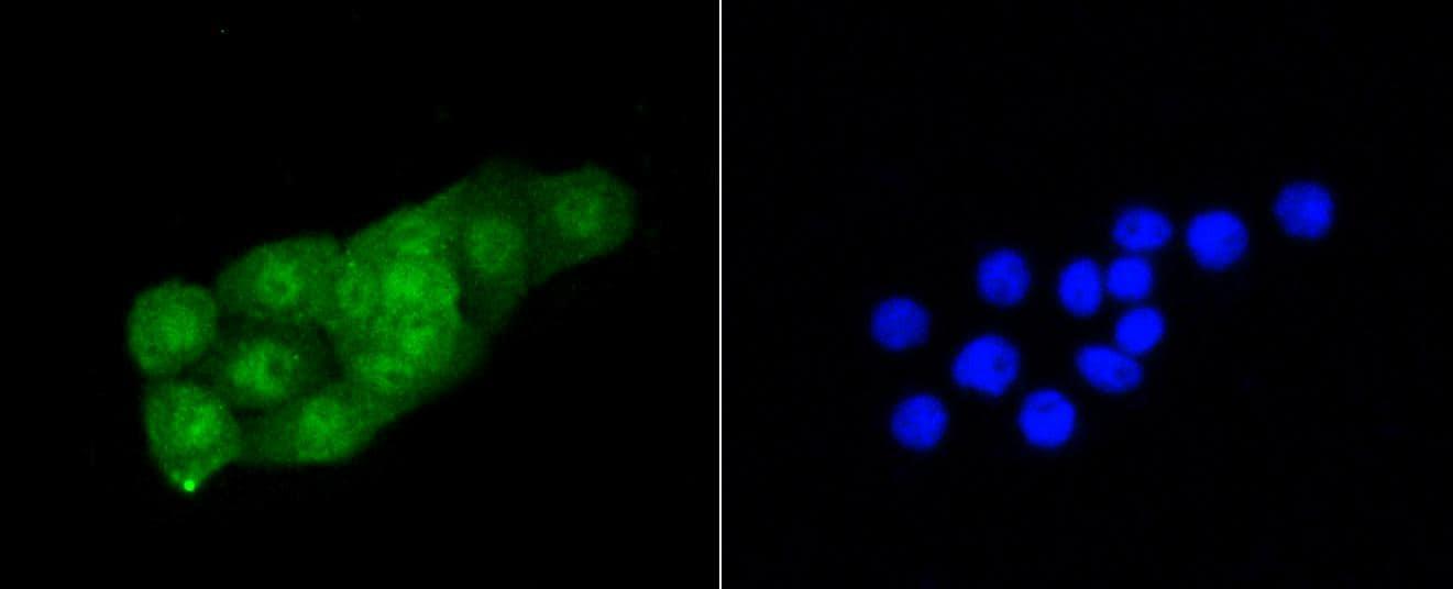 CDK2 Antibody in Immunocytochemistry (ICC)