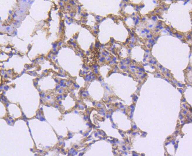 CD140b (PDGFRB) Antibody in Immunohistochemistry (Paraffin) (IHC (P))