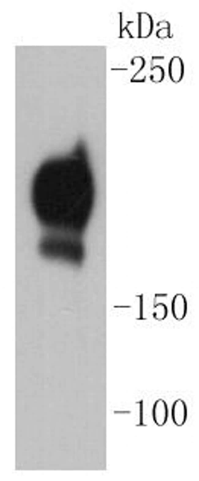 CD140b (PDGFRB) Antibody in Western Blot (WB)
