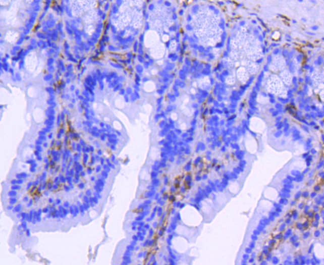 CD61 (Integrin beta 3) Antibody in Immunohistochemistry (Paraffin) (IHC (P))