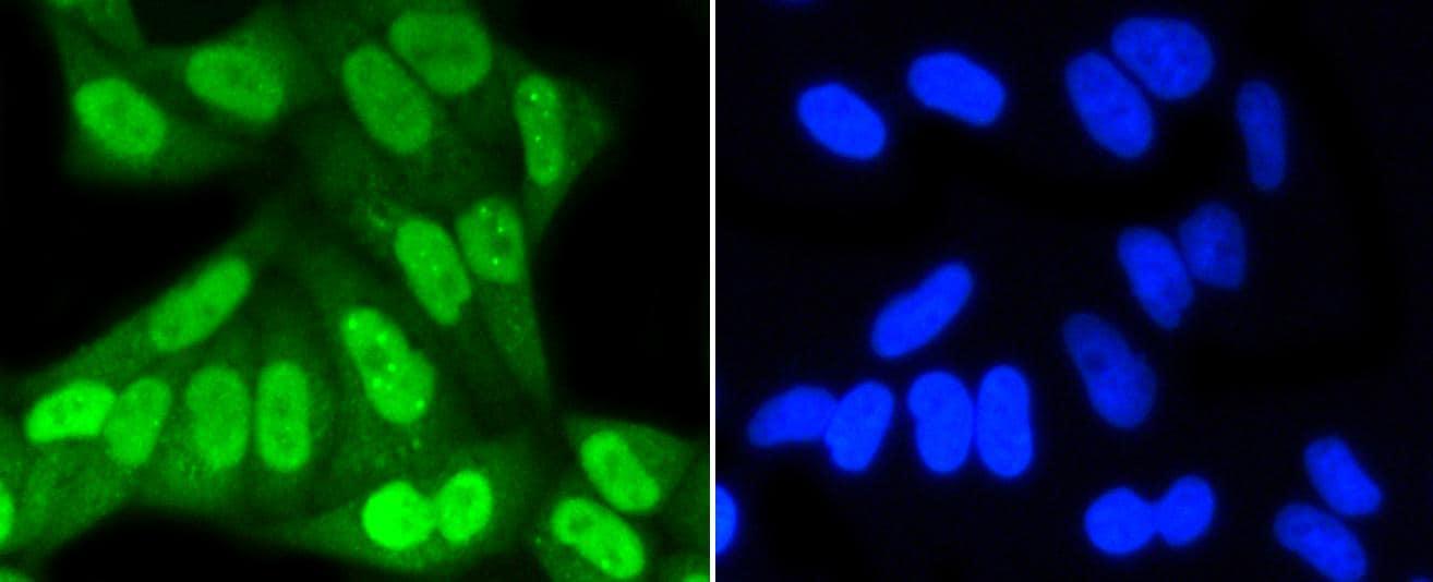 SUMO1 Antibody in Immunocytochemistry (ICC)
