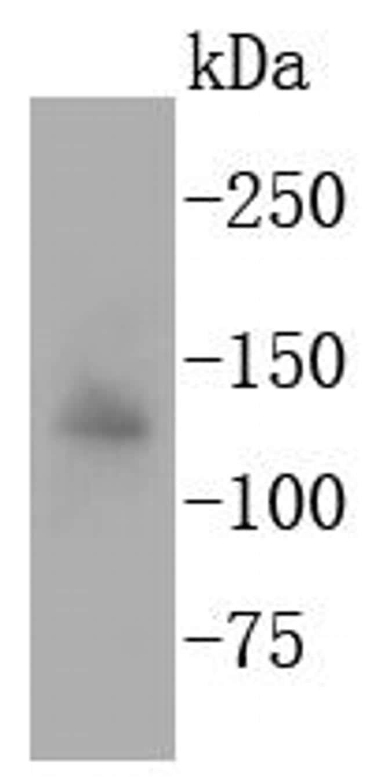 APAF1 Antibody in Western Blot (WB)
