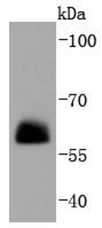 Paxillin Antibody in Western Blot (WB)