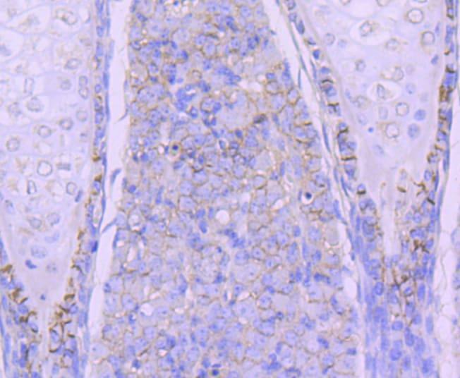 N-cadherin Antibody in Immunohistochemistry (Paraffin) (IHC (P))