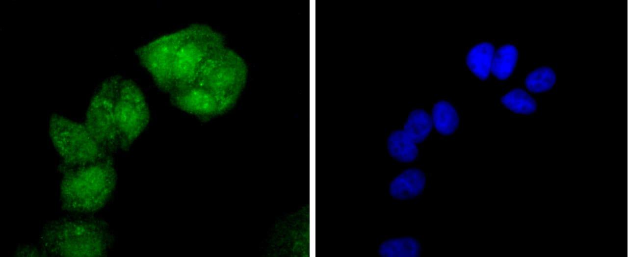 Phospho-HSF1 (Ser326) Antibody in Immunocytochemistry (ICC)