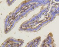 PKC alpha Antibody in Immunohistochemistry (Paraffin) (IHC (P))