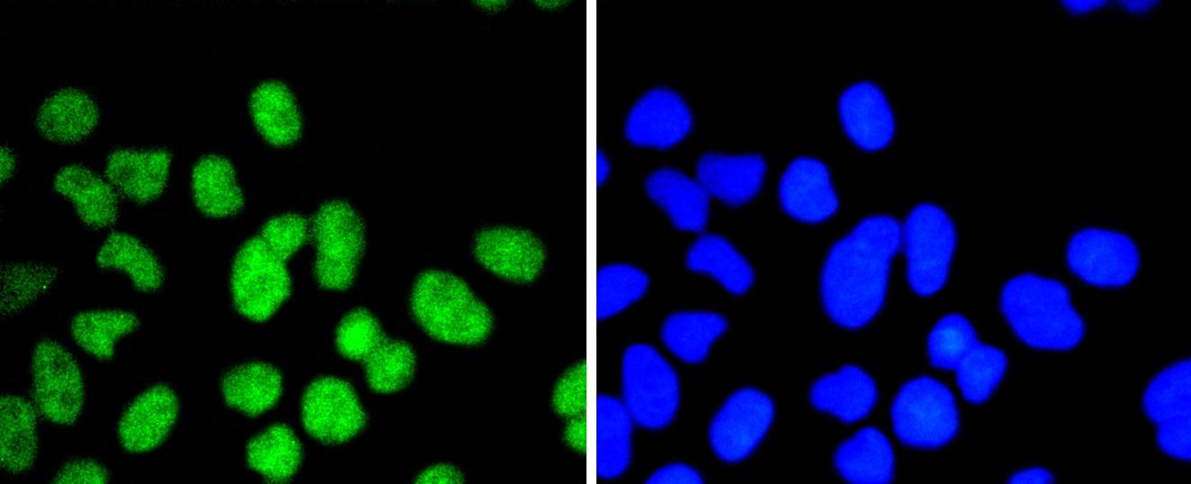ELK1 Antibody in Immunocytochemistry (ICC)