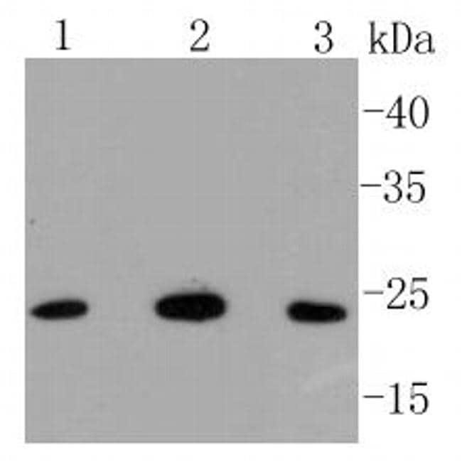 BAK Antibody in Western Blot (WB)