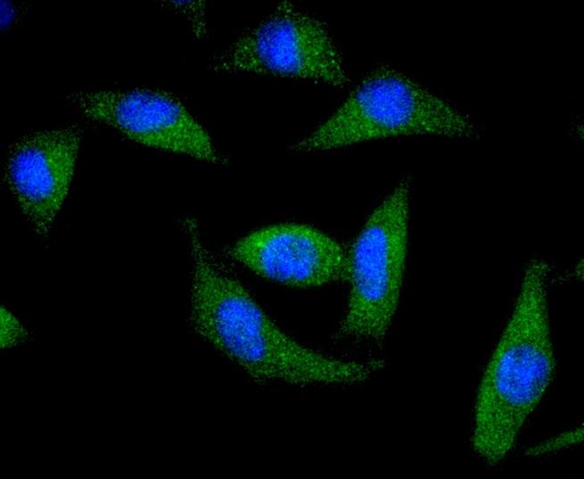DARPP-32 Antibody in Immunocytochemistry (ICC)