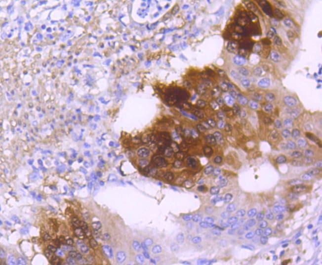 DARPP-32 Antibody in Immunohistochemistry (Paraffin) (IHC (P))