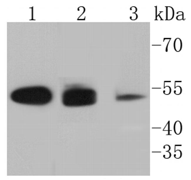 Cytokeratin 8/18 Antibody in Western Blot (WB)