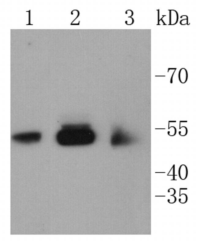 CaMKII Pan Antibody in Western Blot (WB)
