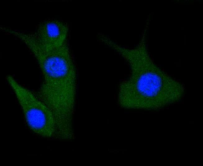 Phospho-PAK1/2/3 (Ser144, Ser141, Ser139) Antibody in Immunocytochemistry (ICC)