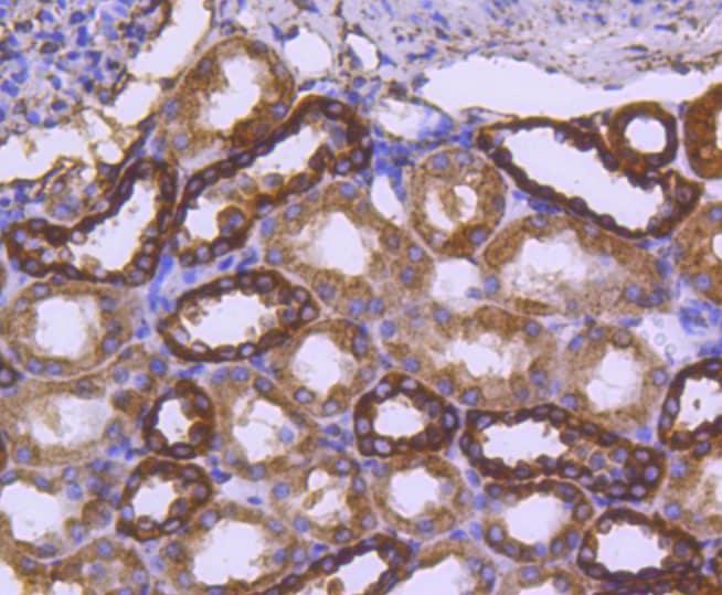 Calreticulin Antibody in Immunohistochemistry (Paraffin) (IHC (P))