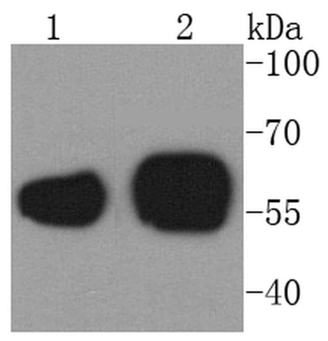 Calreticulin Antibody in Western Blot (WB)