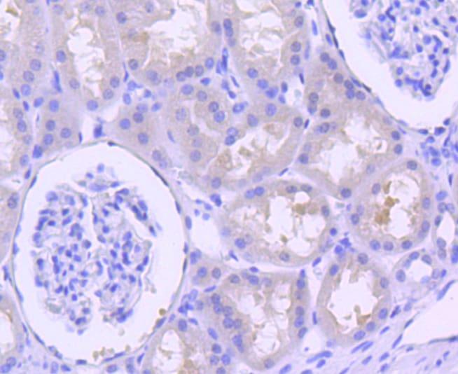 p16INK4a Antibody in Immunohistochemistry (Paraffin) (IHC (P))