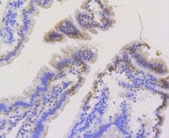 TOMM20 Antibody in Immunohistochemistry (Paraffin) (IHC (P))