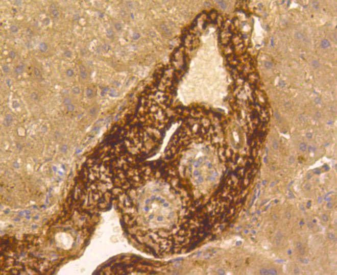 Vitronectin Antibody in Immunohistochemistry (Paraffin) (IHC (P))