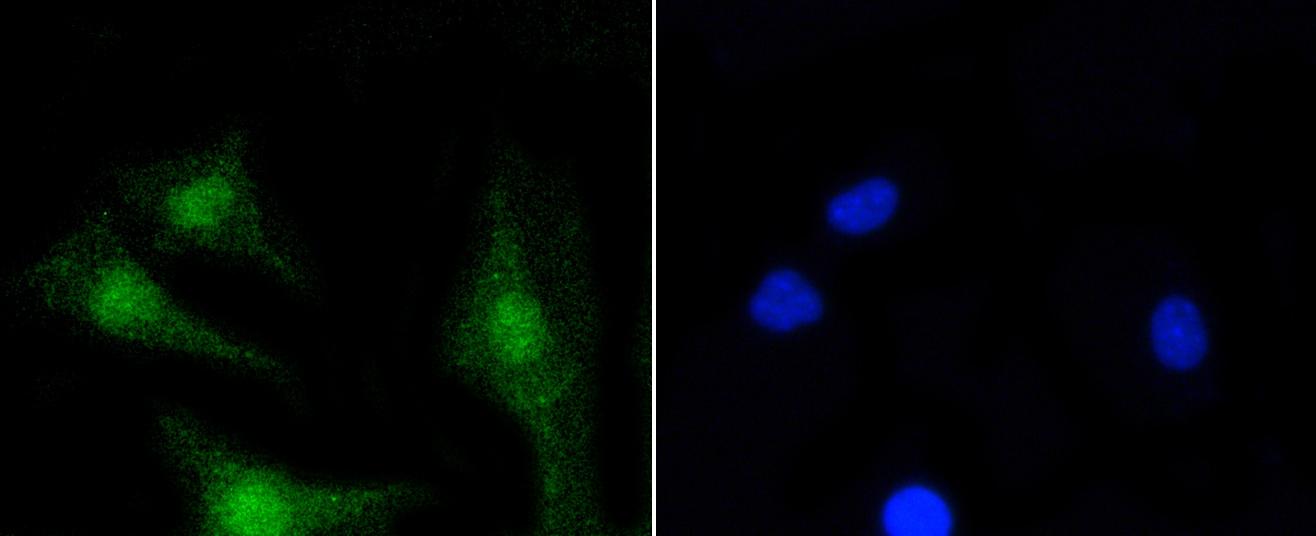 PKC beta-2 Antibody in Immunocytochemistry (ICC)