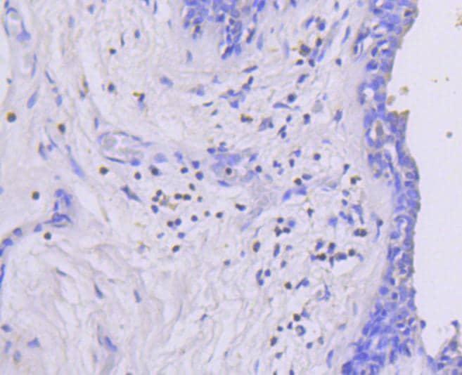 Phospho-MEK1 (Ser218, Ser222) Antibody in Immunohistochemistry (Paraffin) (IHC (P))