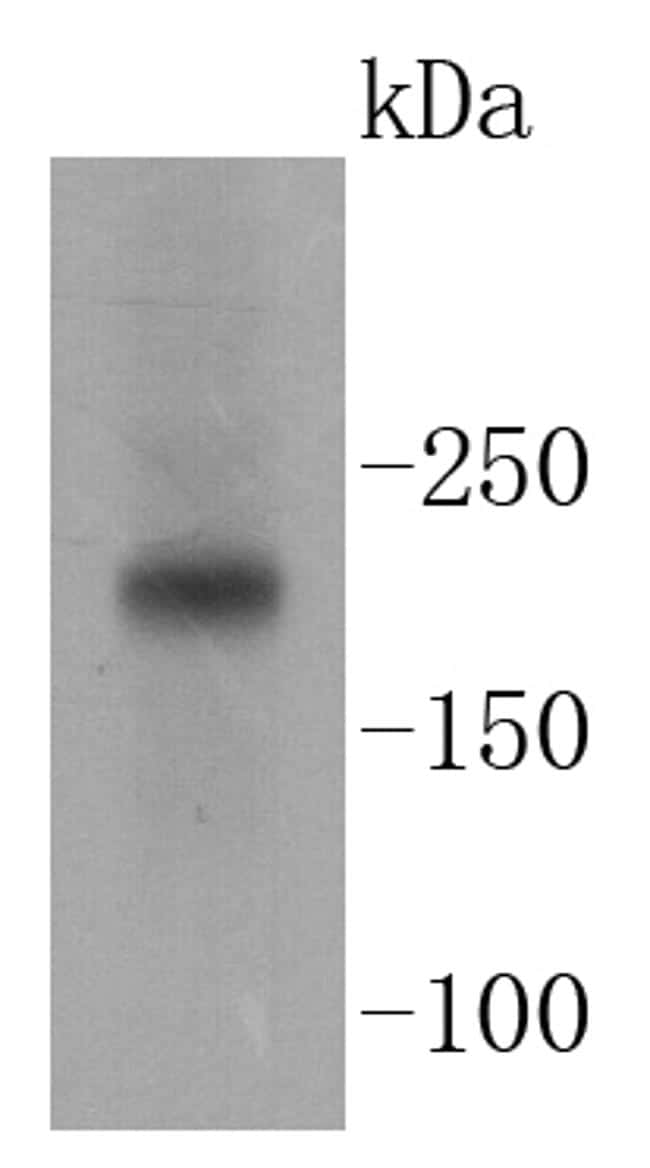 TSC2 Antibody in Western Blot (WB)