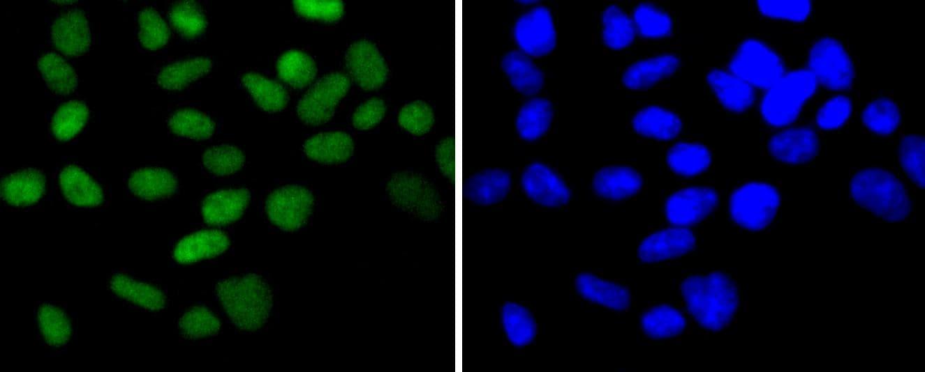 CHK2 Antibody in Immunocytochemistry (ICC)