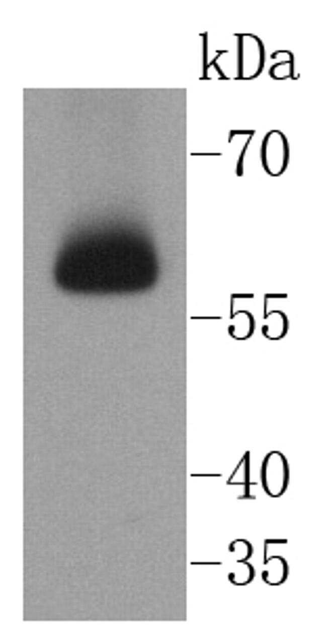 CHK2 Antibody in Western Blot (WB)