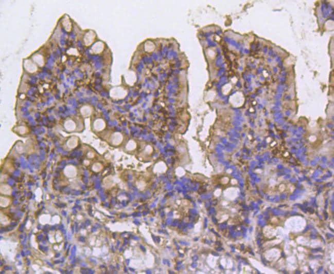 Cortactin Antibody in Immunohistochemistry (Paraffin) (IHC (P))