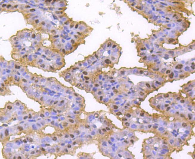 hnRNP C1/C2 Antibody in Immunohistochemistry (Paraffin) (IHC (P))