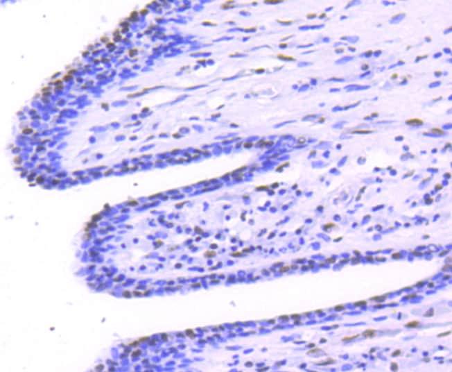 Phospho-STAT1 (Ser727) Antibody in Immunohistochemistry (Paraffin) (IHC (P))