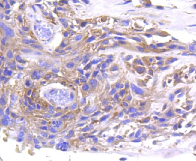 MMP11 Antibody in Immunohistochemistry (Paraffin) (IHC (P))