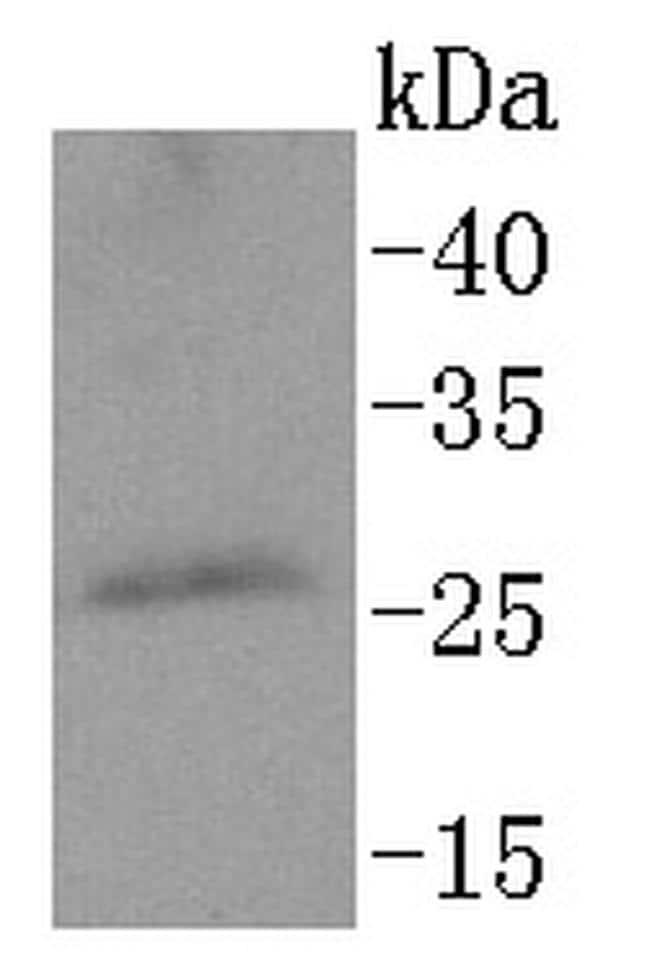 PPP1R1A Antibody in Western Blot (WB)