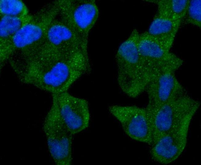 ABCF1 Antibody in Immunocytochemistry (ICC/IF)