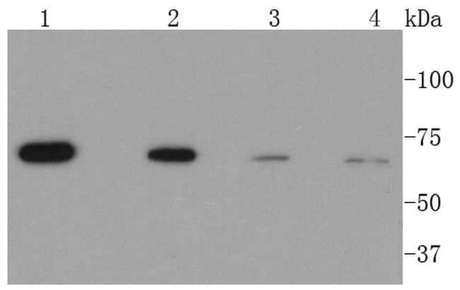 CPT2 Antibody in Western Blot (WB)