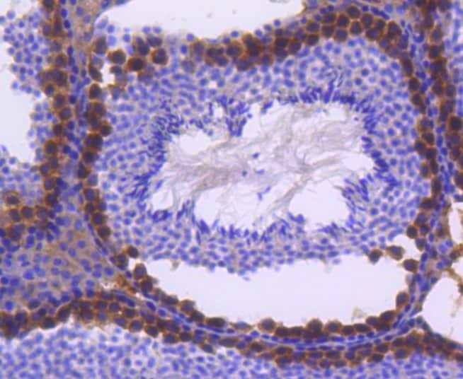 FANCD2 Antibody in Immunohistochemistry (Paraffin) (IHC (P))