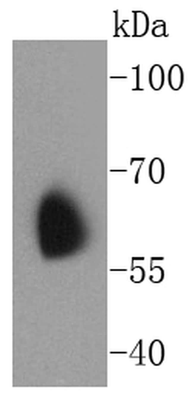 KV1.1 (KCNA1) Antibody in Western Blot (WB)
