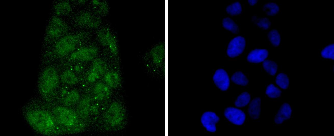 IRF3 Antibody in Immunocytochemistry (ICC)