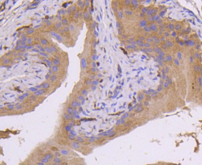 MKK7 Antibody in Immunohistochemistry (Paraffin) (IHC (P))