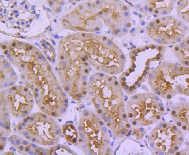 UBE1 Antibody in Immunohistochemistry (Paraffin) (IHC (P))