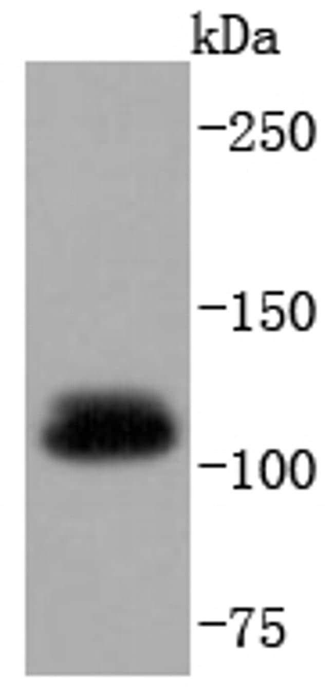 UBE1 Antibody in Western Blot (WB)