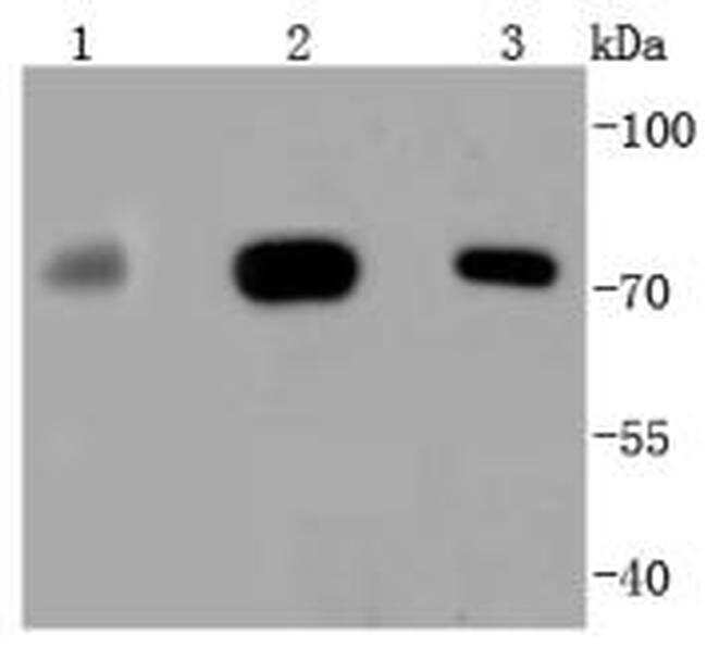 MEKK3 Antibody in Western Blot (WB)