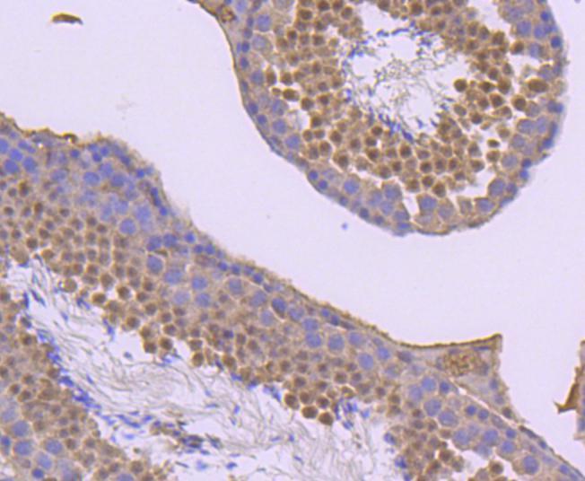 Phospho-JunD (Ser255) Antibody in Immunohistochemistry (Paraffin) (IHC (P))