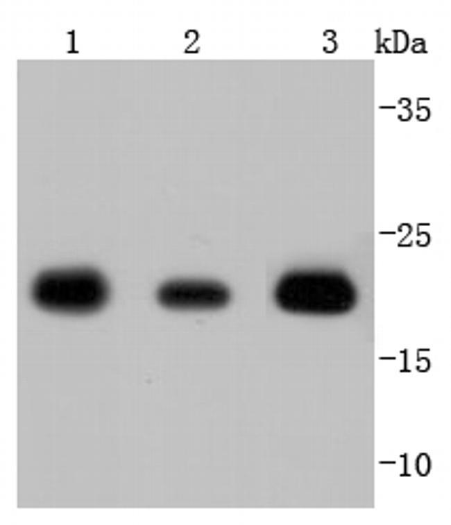 SOD2 (MnSOD) Antibody in Western Blot (WB)
