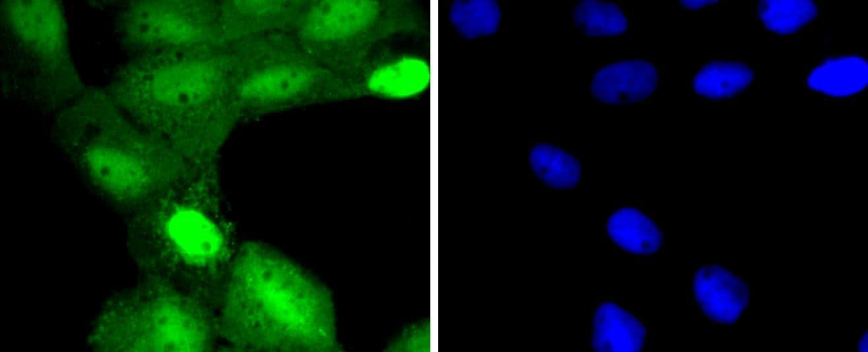 TSG101 Antibody in Immunocytochemistry (ICC)