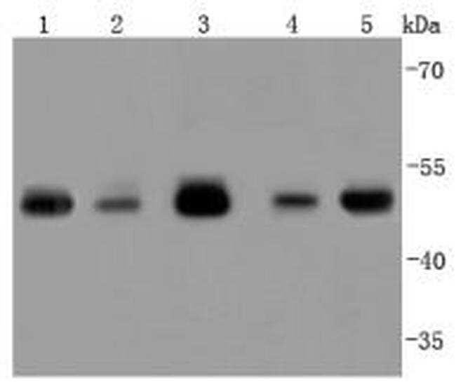 TSG101 Antibody in Western Blot (WB)